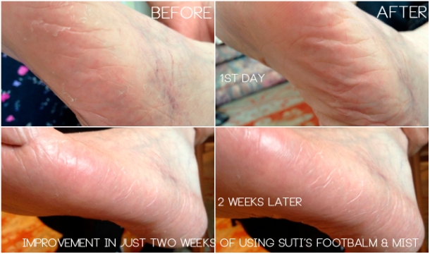 Before & After Suti Fab Foot Balm Review